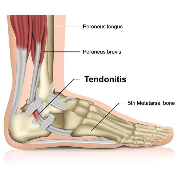 what-is-peroneal-tendonitis